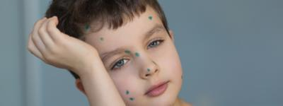How Does Chicken Pox Spread
