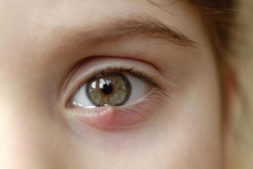 How To Get Rid Of A Stye 17 Home Remedies And Treatments