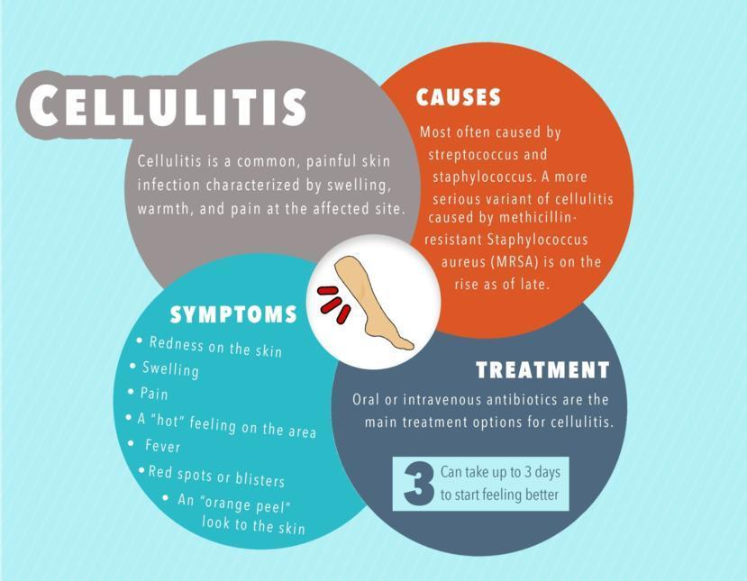 What is Cellulitis: Symptoms, Causes, and Treatments for Cellulitis