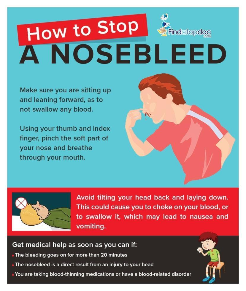 Nose Bleed: Causes, Diagnosis, and Treatment   FindATopDoc