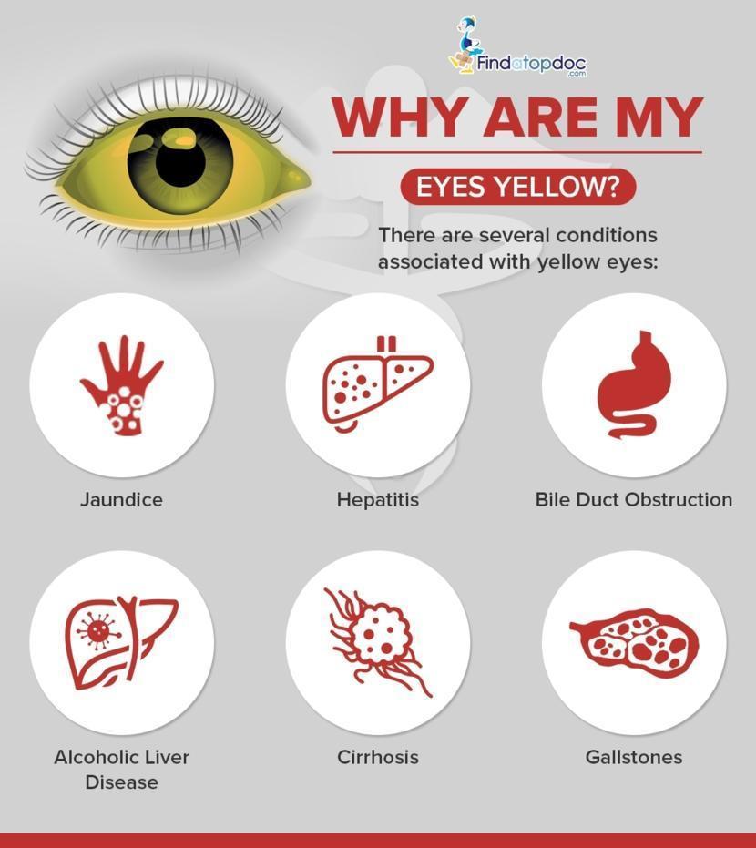 why acid reflux jaundice