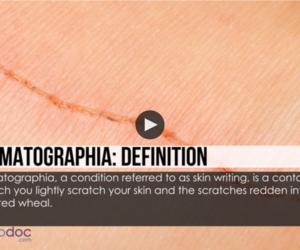 What Is Dermatographia? [video]