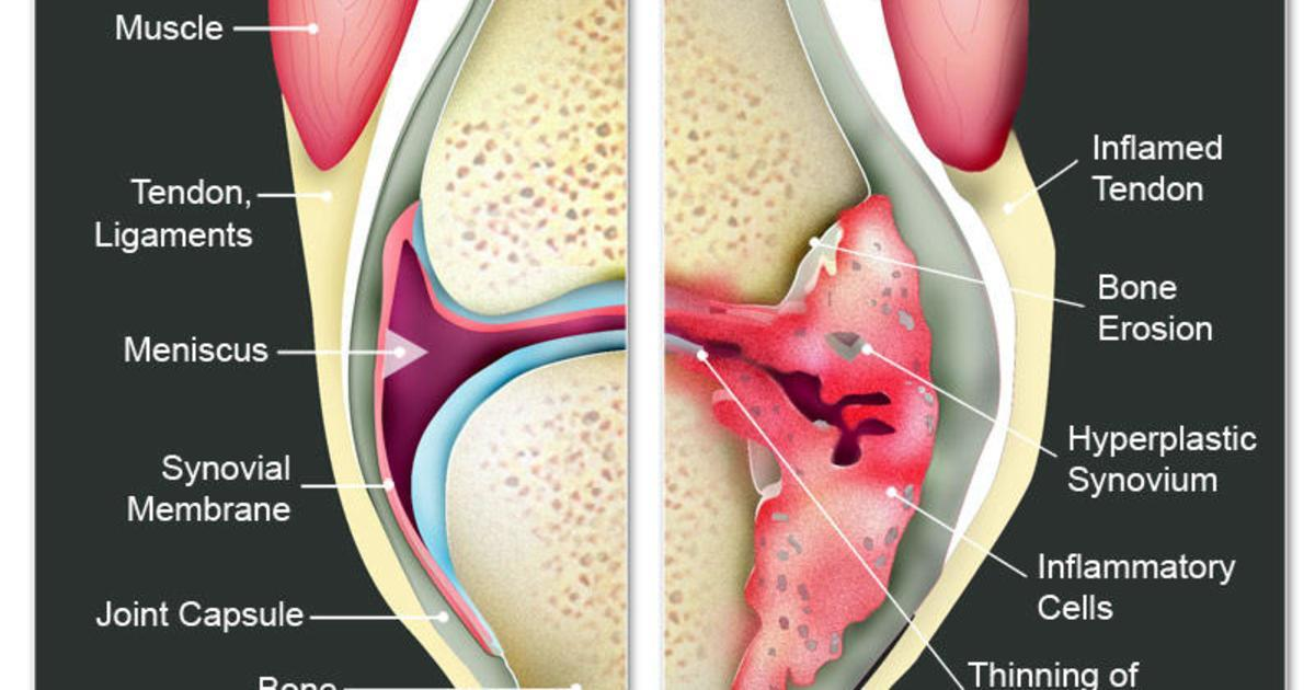 Osteo And Rheumatoid Arthritis Causes Prevention And What You Can Do