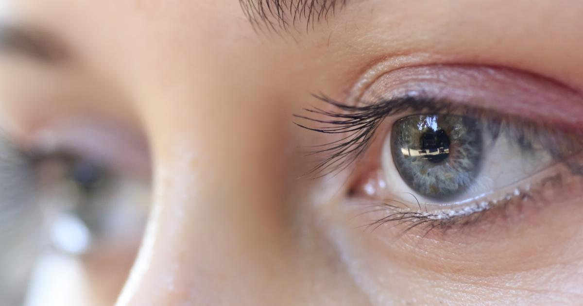 Can Rosacea Affect my Eyes?