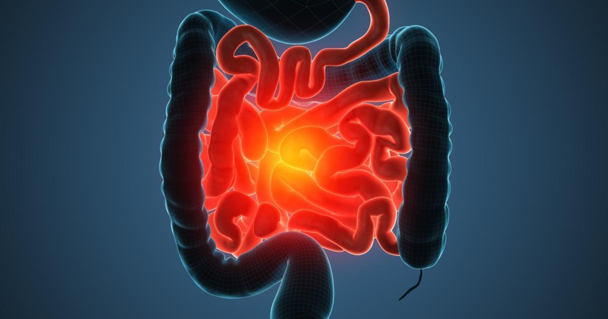 How to Take Control of Crohn's Flare-Ups Slideshow