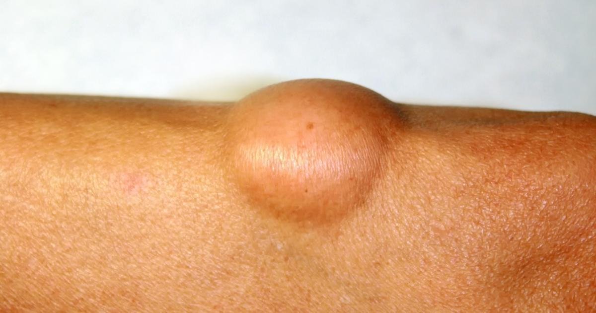 What Is Lipoma Causes Lipoma Removal And What S Involved