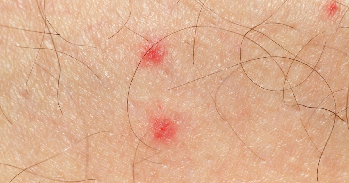 What is Petechiae, and What are its Causes