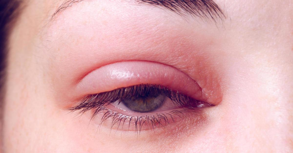 What Could A Swollen Eyelid Mean 10 Possible Causes