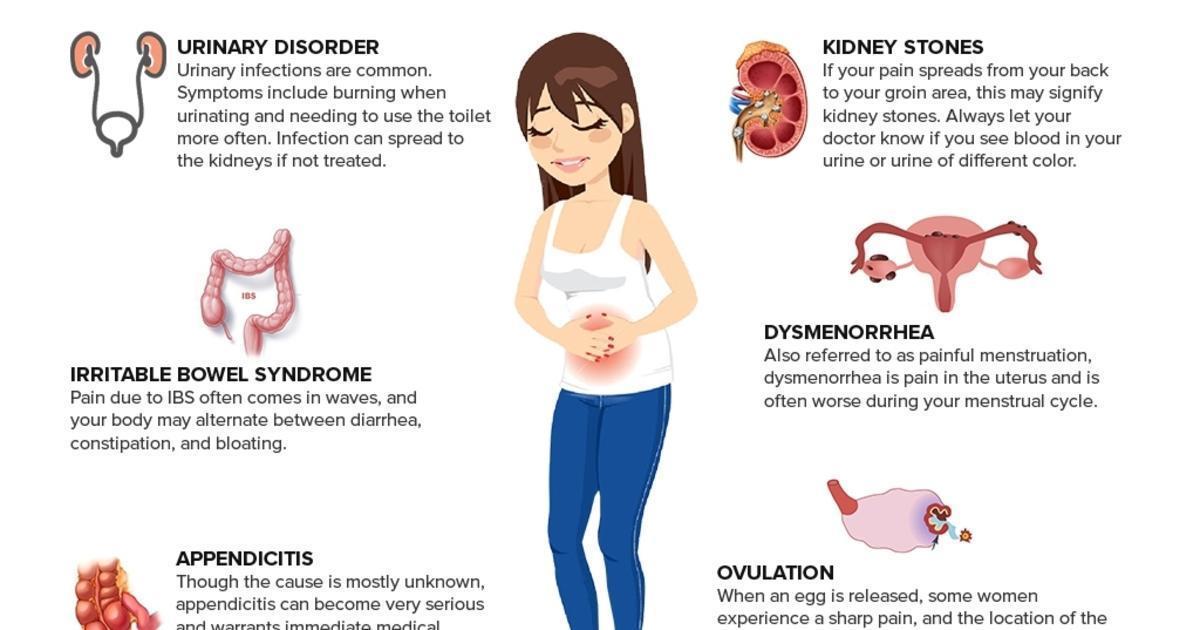 Female Abdominal Pain Infographic