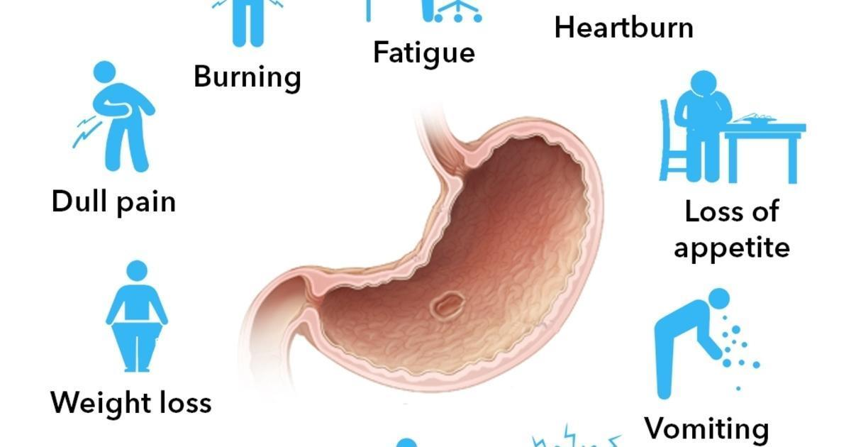 What are the Symptoms of Stomach Ulcer? [Infographic]