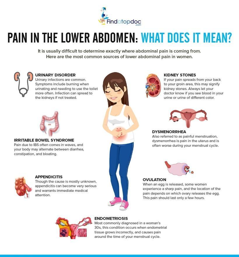 Female Abdominal Pain Infographic