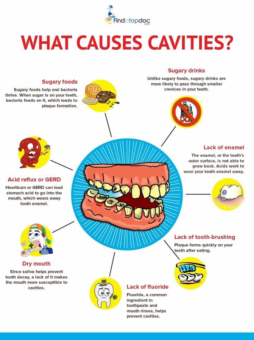 what are cavities  what causes cavities   infographic