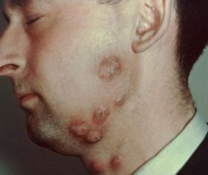Ringworm Pictures: What does Ringworm look like?