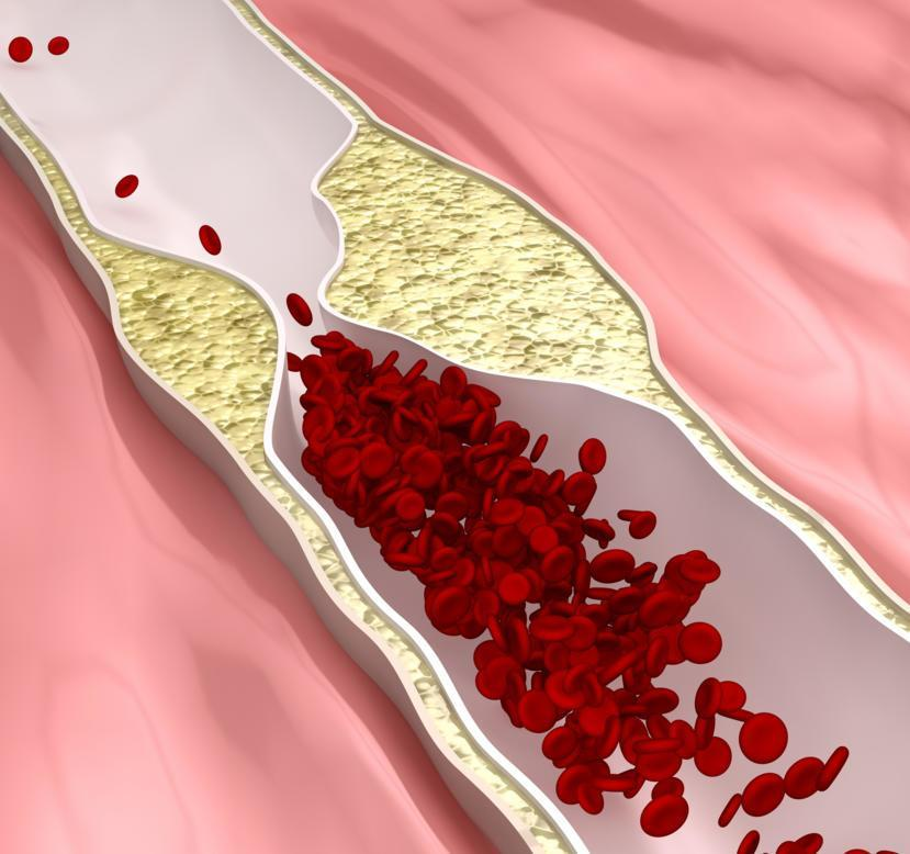 what is atherosclerosis: types, symptoms, and home remedies, Human Body