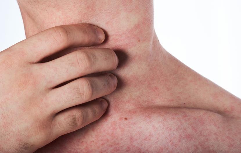 mononucleosis symptoms Adult