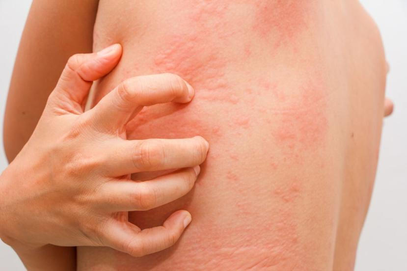 What are hives different types of hives for What does a caterpillar rash look like