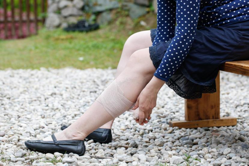What are Leg Ulcers?