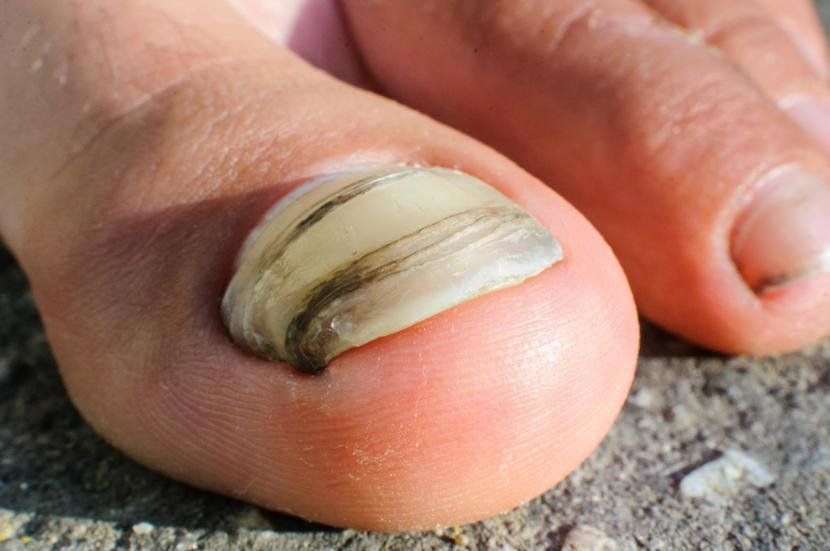 What are the Causes and Symptoms of Nail Fungus?