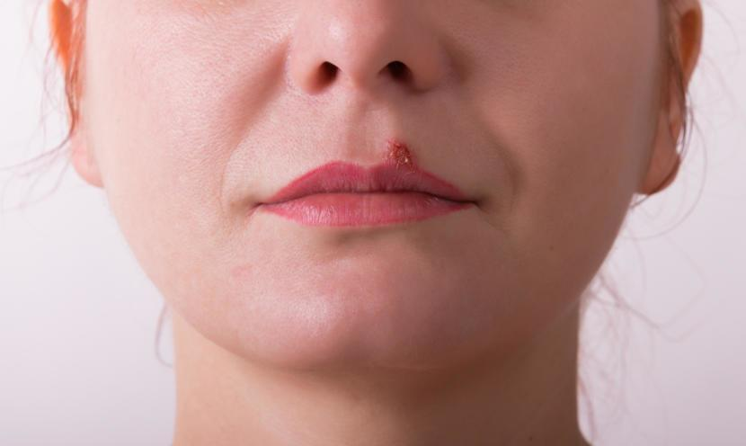how to detect herpes without symptoms
