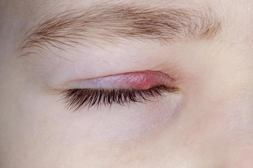 What Is Blepharitis