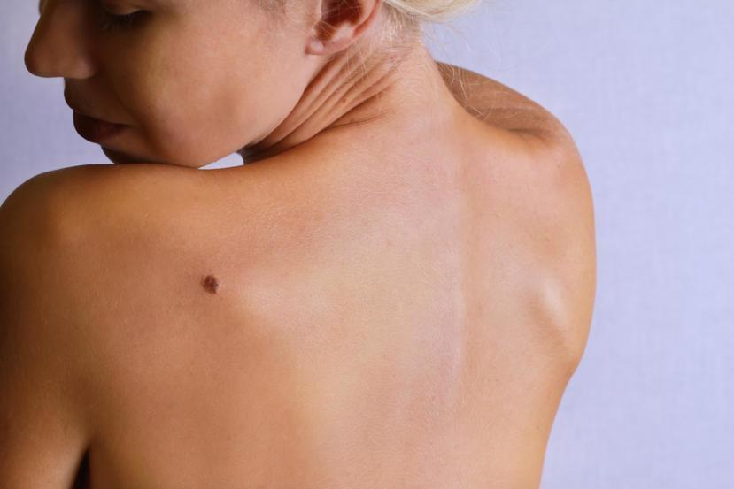 What Is Nodular Melanoma Symptoms Of Nodular Melanoma