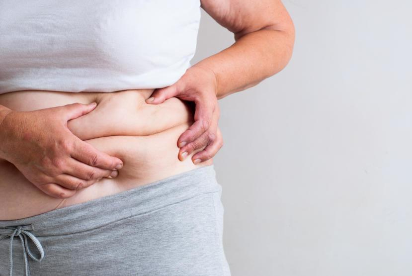 What To Expect After Gastric Bypass Surgery Results
