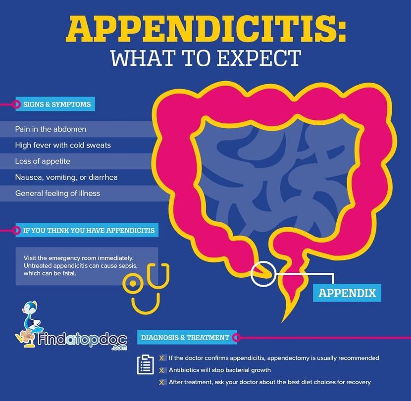 Appendicitis: Get the Facts