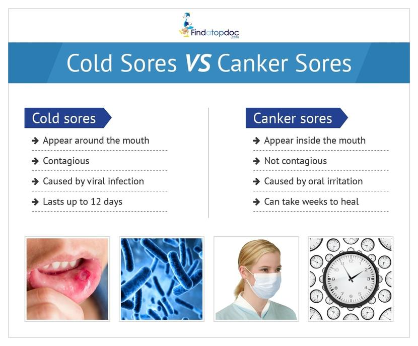 ColdSoreCankerSore