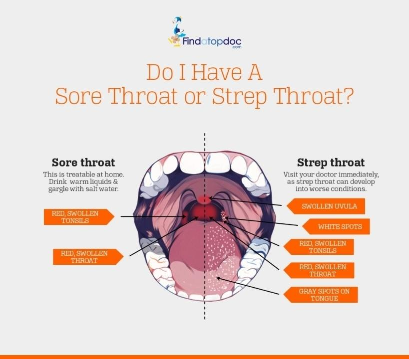 Meningitis Is Usually Caused By A Viral Infection But: The Signs Of Strep Throat