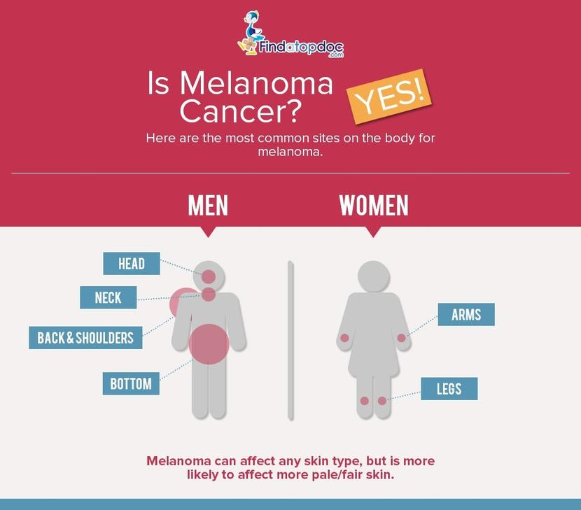 Melanoma Cancer