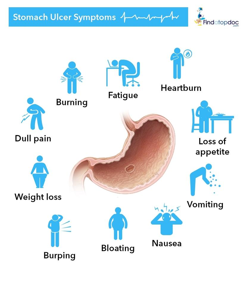 Treatment of gastric ulcer