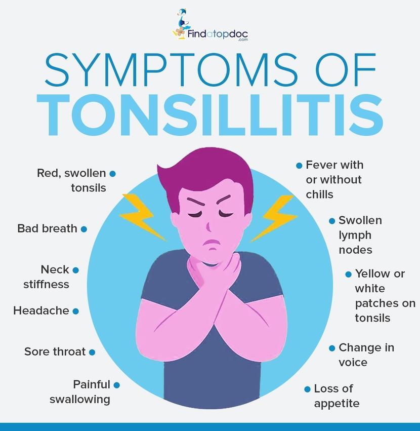 Tonsillitis: Symptoms, Causes, Treatment, and Diagnosis ...
